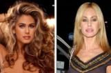 Преди и след - пластичните операции