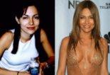 Жените преди и след силиконовите импланти